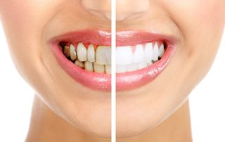 Tooth Discoloration & Stains: Types, Causes, And Preventive Method